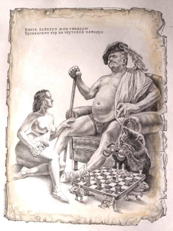 Гонартроз